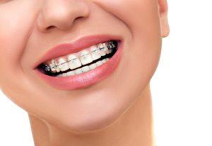 ortodonti-ortodontics-3